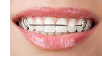 orthodontics sevenoaks kent