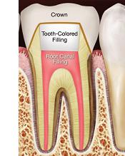 endodontics sevenoaks kent