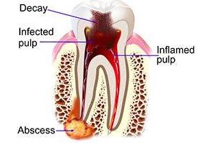 endodontist sevenoaks kent