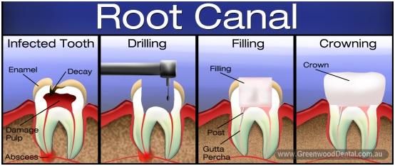 root canal sevenoaks kent