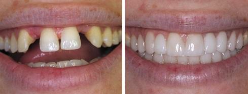 dental practice in sevenoaks, kent