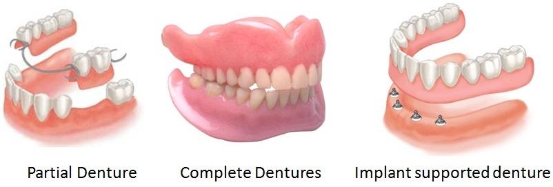 cosmetic denture sevenoaks kent