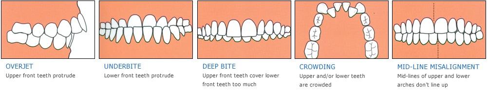orthodontic sevenoaks kent