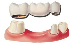 private dentist in sevenoaks, kent